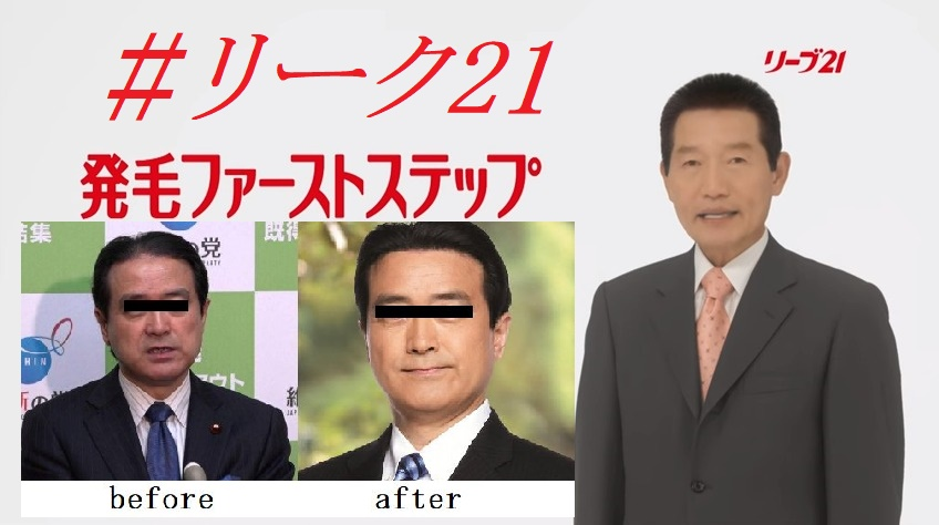 江田憲司#リーク21に毛髪クリニックリーヴ21が反応「なんも言えねえ」イメージキャラクター起用か?